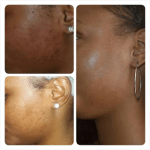 Peeling Cream: Buy Reliable Skin and Facial Chemical Peel Products Online