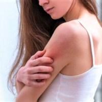 Dermatite atopica: più attenzioni con il freddo