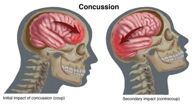 Concussion- skull image