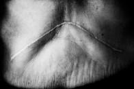 Ecuador, Amazon. December 2011. A woman shows the scar due to her stomach cancer surgery.