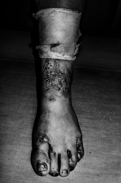 Patient's wounded foot