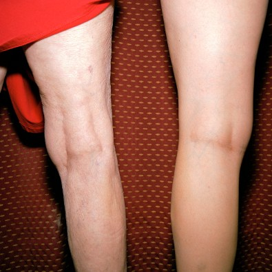 10.Same Knees