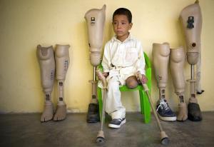 prosthetic-legs