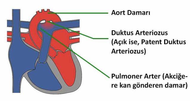 Patent Duktus Arteriyozus