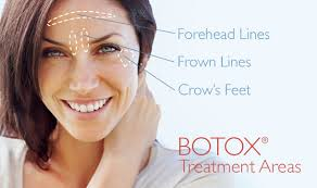 botox-treatments-schuamburg