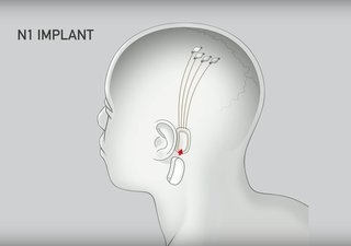 """The behind-the-ear implant, called """"N1,"""" can be inserted through a 2mm incision behind the ear. The surgery can be performed while the patient is awake, and it's supposedly about as traumatic as LASIK."""