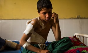 A 12-year-old boy in Jalalabad Hospital after he survived a US drone strike that killed his father. The US military claims it was targeting Isis fighters in Nangarhar province, Afghanistan.