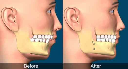 Jaw Surgery and Oral Health Lewisham dental practice