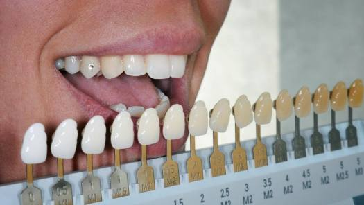 Selected Whitened Teeth