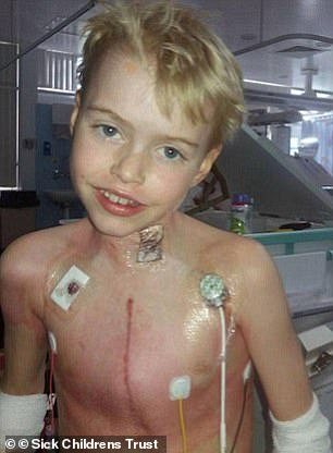 Max Johnson was saved by a heart transplant