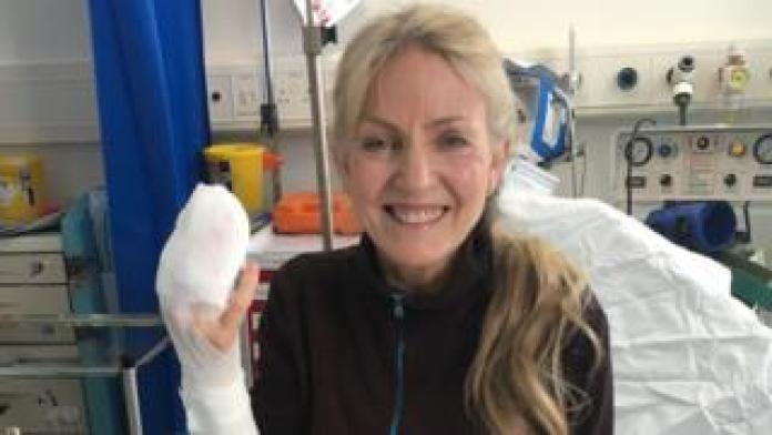 Jillian in hospital after the injury has been treated