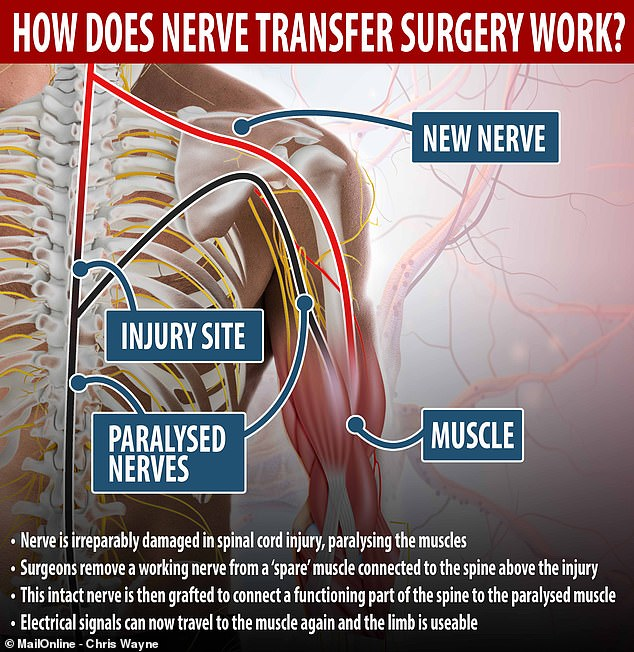 Nerve transfer surgery works by removing a healthy nerve from elsewhere in the body and using it to reconnect a paralysed muscle to the brain by surgically grafting it on