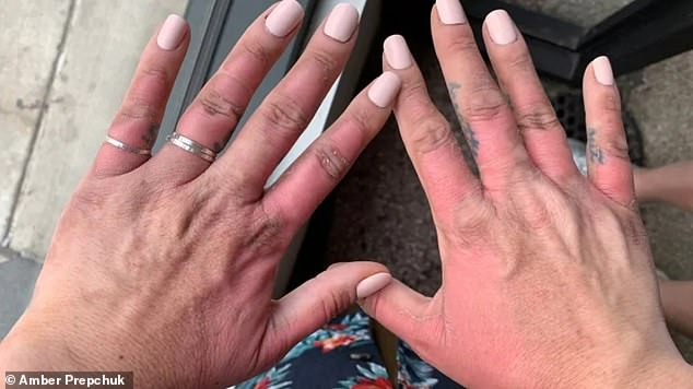 'It was excruciating': Amber Prepchuk, a make-up artist, suffered blistering burns on her hands after squeezing limes before going in the sun
