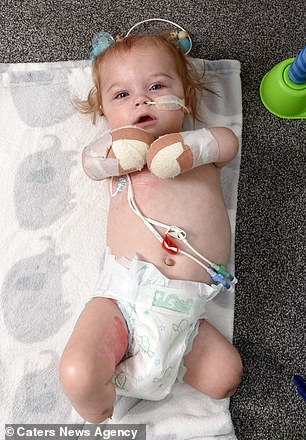 Doctors decided to amputate the youngster's limbs after one of his legs 'broke off' in his mother's hands when she went to pick him up