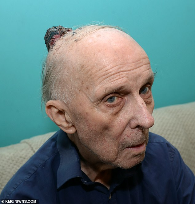 George Hobbs, 89, of Gillingham, Kent, has died after claimingdoctors initially sent him home with paracetamol for a cancerous lump on his head. He is pictured in May