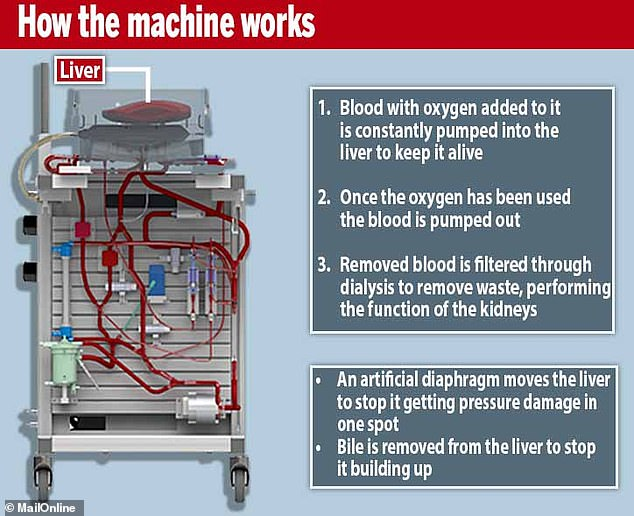 TheLiver 4 Life machine has various processes which mimic the actions of the human body, such as blood being pumped through it, an artificial muscle moving it around and a dialysis machine filtering the blood