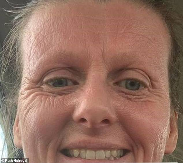 It has been a year since Ruth has stopped using steroids (pictured), and she has noticed that while her skin is improving, the trauma to her skin has left it looking aged. Pictured, now