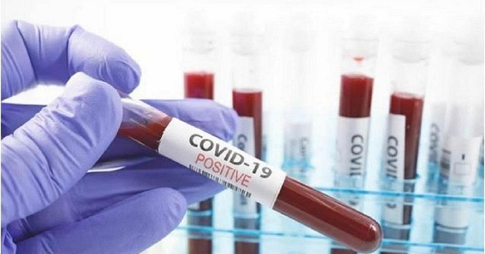 Forty more Ugandans have tested positive for COVID- 19 to bring the total number of infected Ugandans to 457.