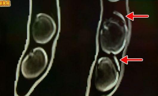 MRIに写り込んだココ。