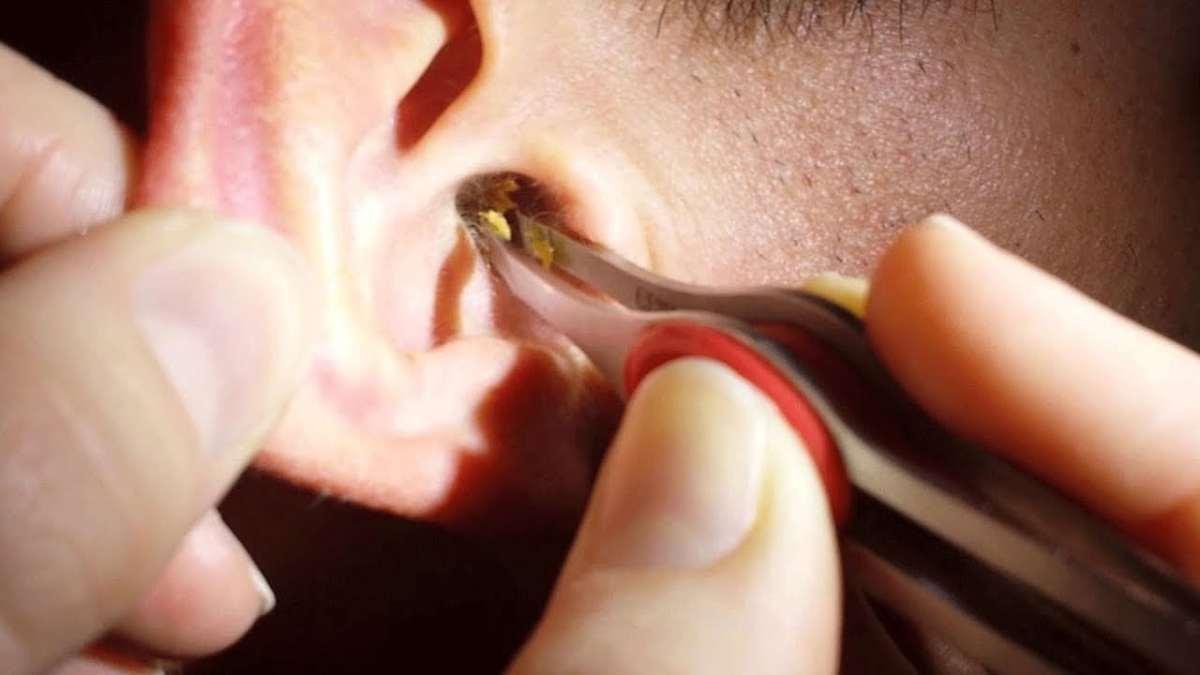 Ear Wax Removal Tool