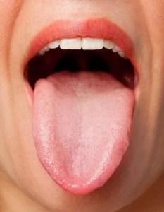 sore and reddish tongue