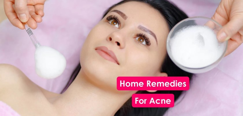 Effective-natural-home-remedies-for-treating-acne