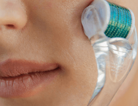 how to properly use a derma roller and sanitize derma rollers