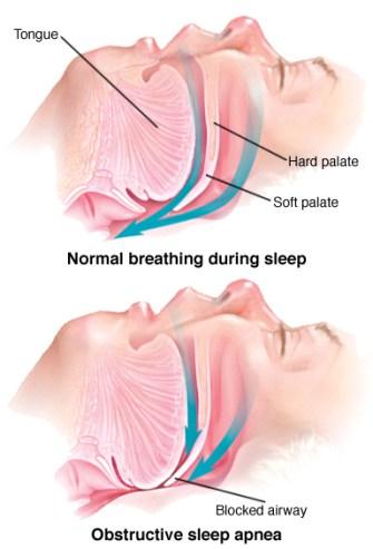 Sleep Apnea (OSA)