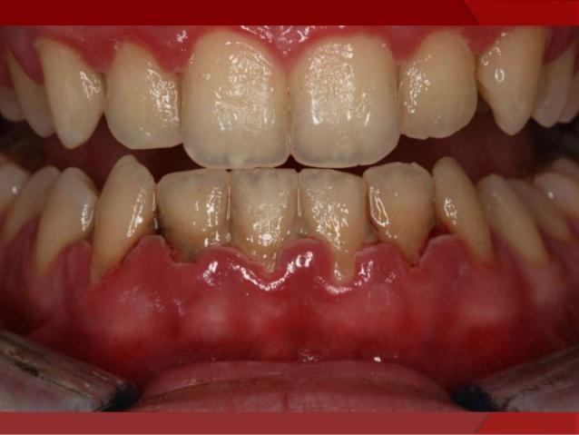 Tipos De Periodontitis Caballero Dental Clinic