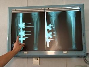 En las operaciones, conducidas a lo largo de este año, se extrajeron huesos afectados por tumores cancerígenos y se sustituyeron por las prótesis impresas.