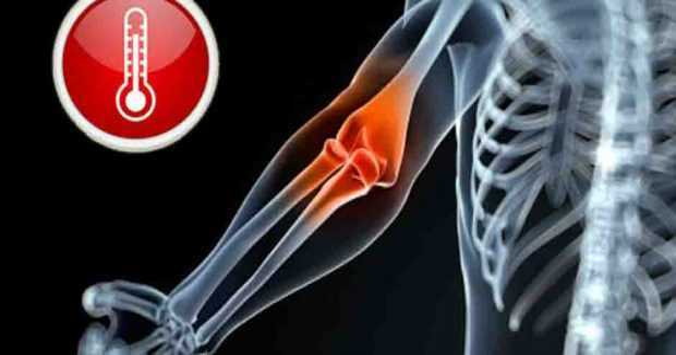 dolor-huesos