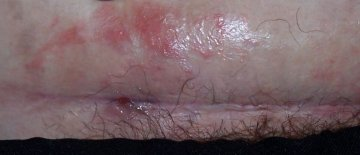 Pictures Of Infected C Section Scars | Djiwallpaper co
