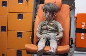 Omran è rimasto in Siria: è vivo per miracolo.