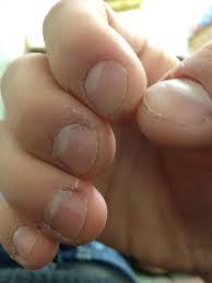 rosul unghiilor de ce apar striatiile pe unghii