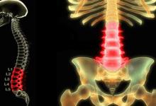 """في ظل """"كورونا"""".. نصائح لحماية ظهرك من الألم"""