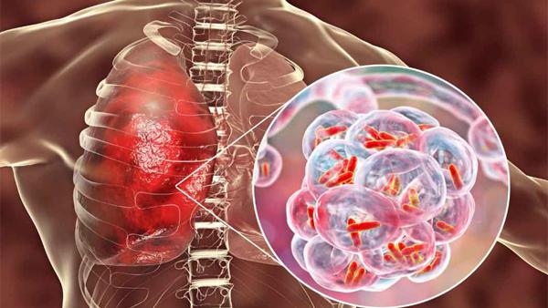 الصحة: تسجيل 823 حالة إيجابية جديدة بفيروس كورونا ..و 39 حالة وفاة