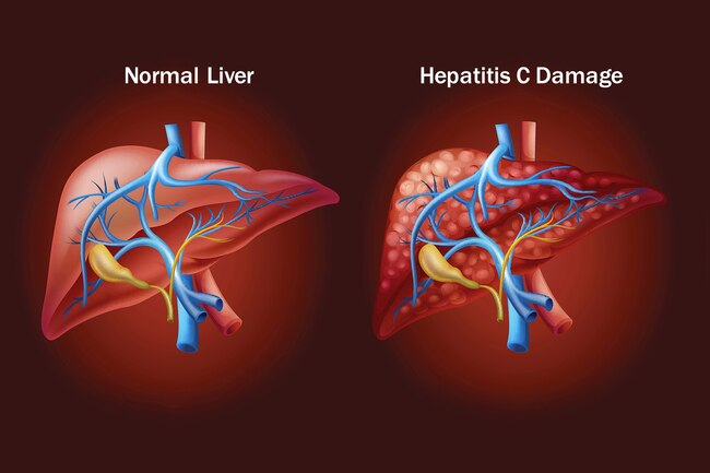 VIRAL HEPATITIS: WHAT YOU SHOULD KNOW