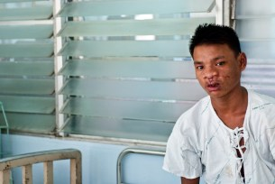 Young man after surgery Operation Smile