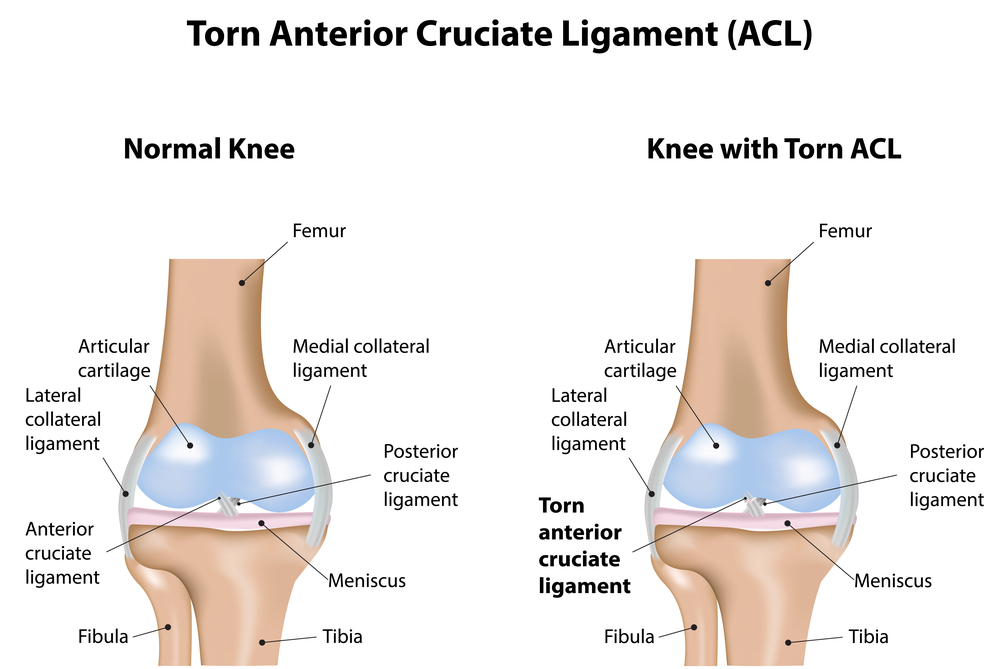 illustration comparing a normal knee to a knee with a torn ACL