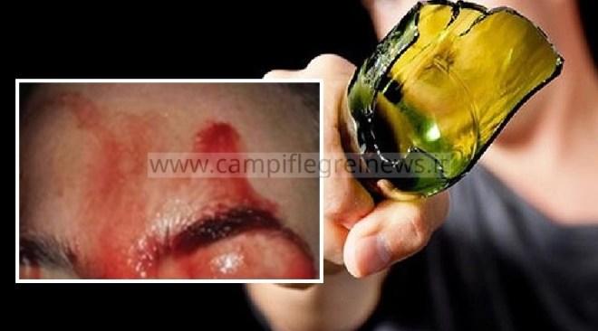 ULTIMORA/ Testa spaccata e sfregio permanente al viso, 24enne puteolano vittima di un parcheggiatore abusivo