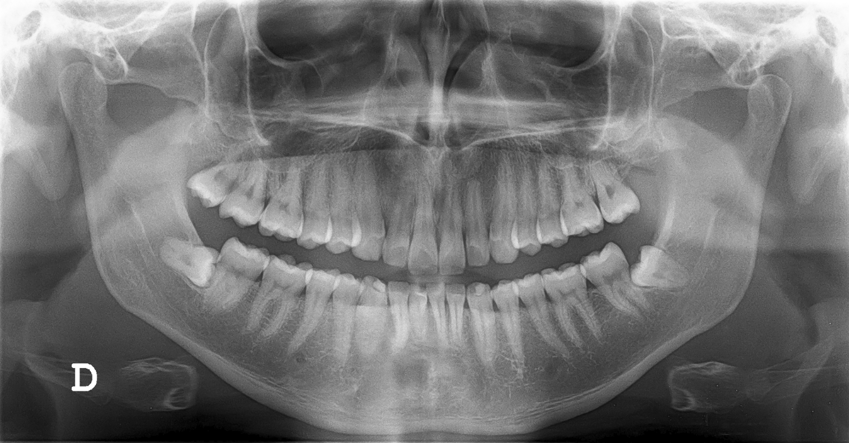 Digital Vs Conventional Radiography In The Dental Office