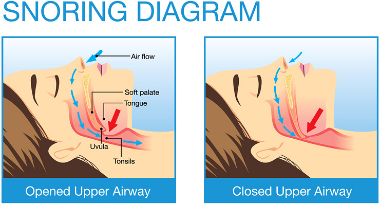 The Anatomy of Snoring Diagram