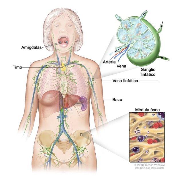 Dibujo del sistema linfático que muestra los vasos y órganos linfáticos, incluso los ganglios linfáticos, las amígdalas, el timo, el bazo y la médula ósea. Un recuadro muestra la estructura de un ganglio linfático y los vasos linfáticos. Las flechas en el diagrama muestran cómo la linfa y las células inmunitarias llamadas linfocitos entran y salen de los ganglios linfáticos. Otro recuadro muestra una vista de cerca de la médula ósea.