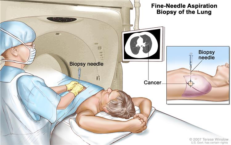 Enlarge Fine Needle Aspiration Biopsy Of The Lung Drawing Shows A Patient Lying On A