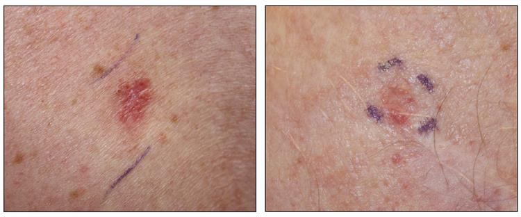 Photographs showing a pink, scaly lesion on the skin (left panel) and flesh-colored nodules on the skin (right panel).