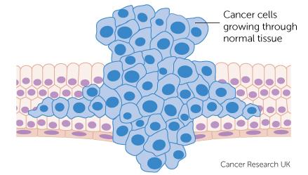 Risultati immagini per cancer