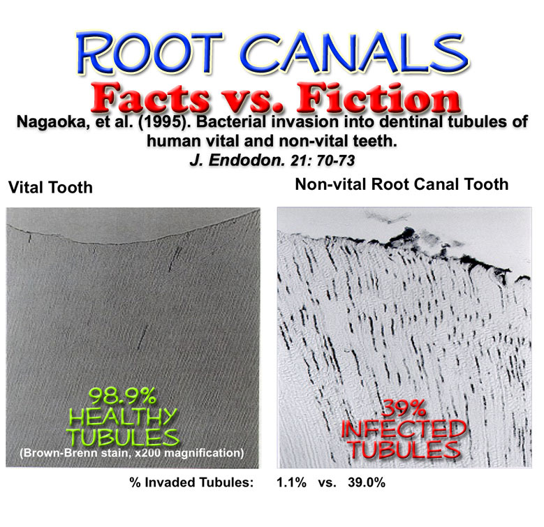 https://i2.wp.com/www.cancertruth.net/wp-content/uploads/2012/05/root-canal.jpg