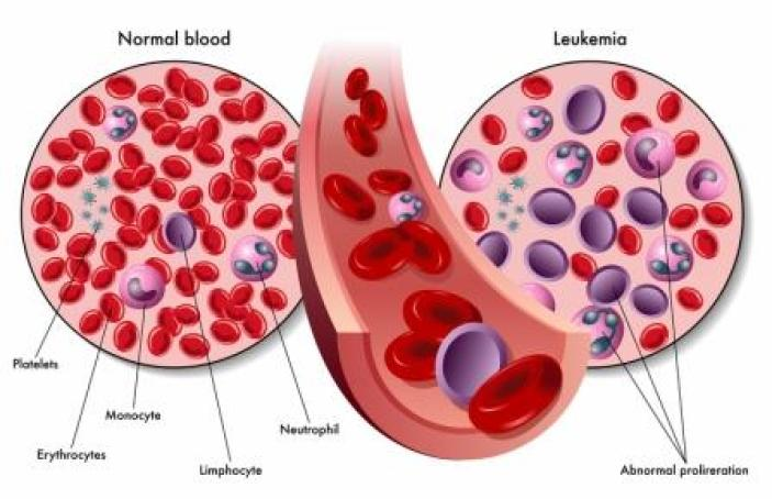 Normal blood vs. blood with leukemia