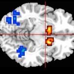 El cannabidiol ayuda a restablecer la función cerebral en la psicosis