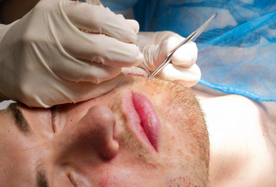 Trasplante de Barba: Preguntas Frecuentes